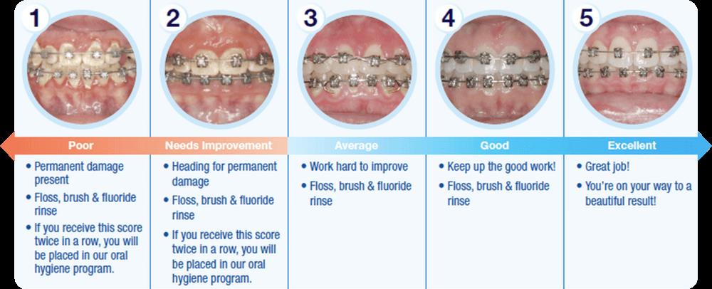 Armbrecht wierenga orthodontics braces care instructions grand rapids braces solutioingenieria Choice Image