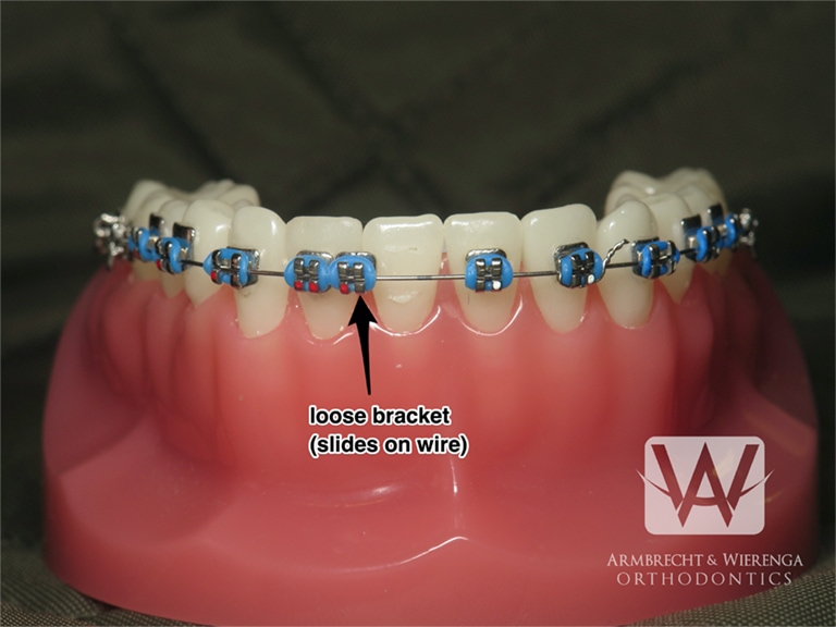 Braces Care Guide | Frequently Asked Questions About ...
